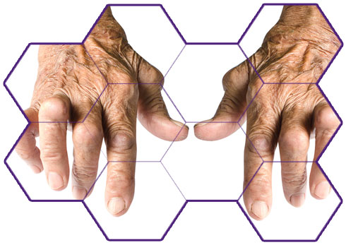Onging Trials Rheumatoid Arthritis