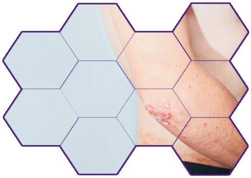 Medvin Clinical Research Onging Trials Psoriatic Arthritis